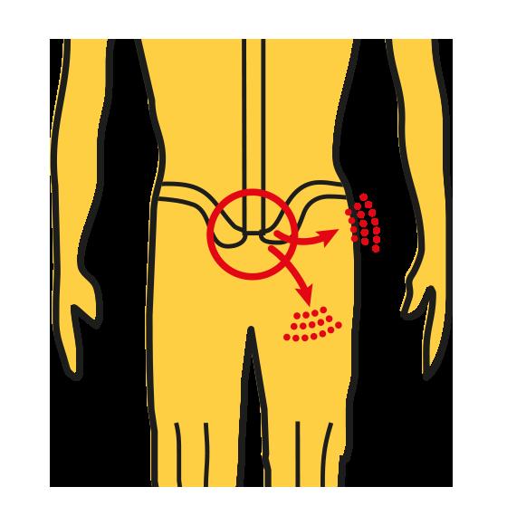 Ischias: pijn in de lage rug met uitstraling naar het bovenbeen of de bil