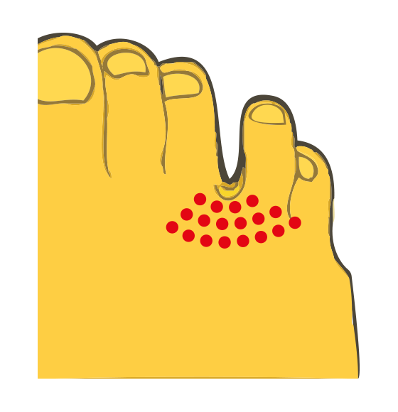Schematische weergave van Mortonse Neuralgie - Pijnindicatie tussen de derde en vierde teen