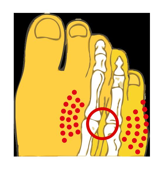 Schematische weergave van Mortonse Neuralgie - Beknelling van de zenuw tussen de beentjes in de voorvoet
